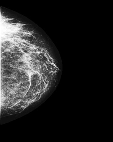 Raw Mammogram